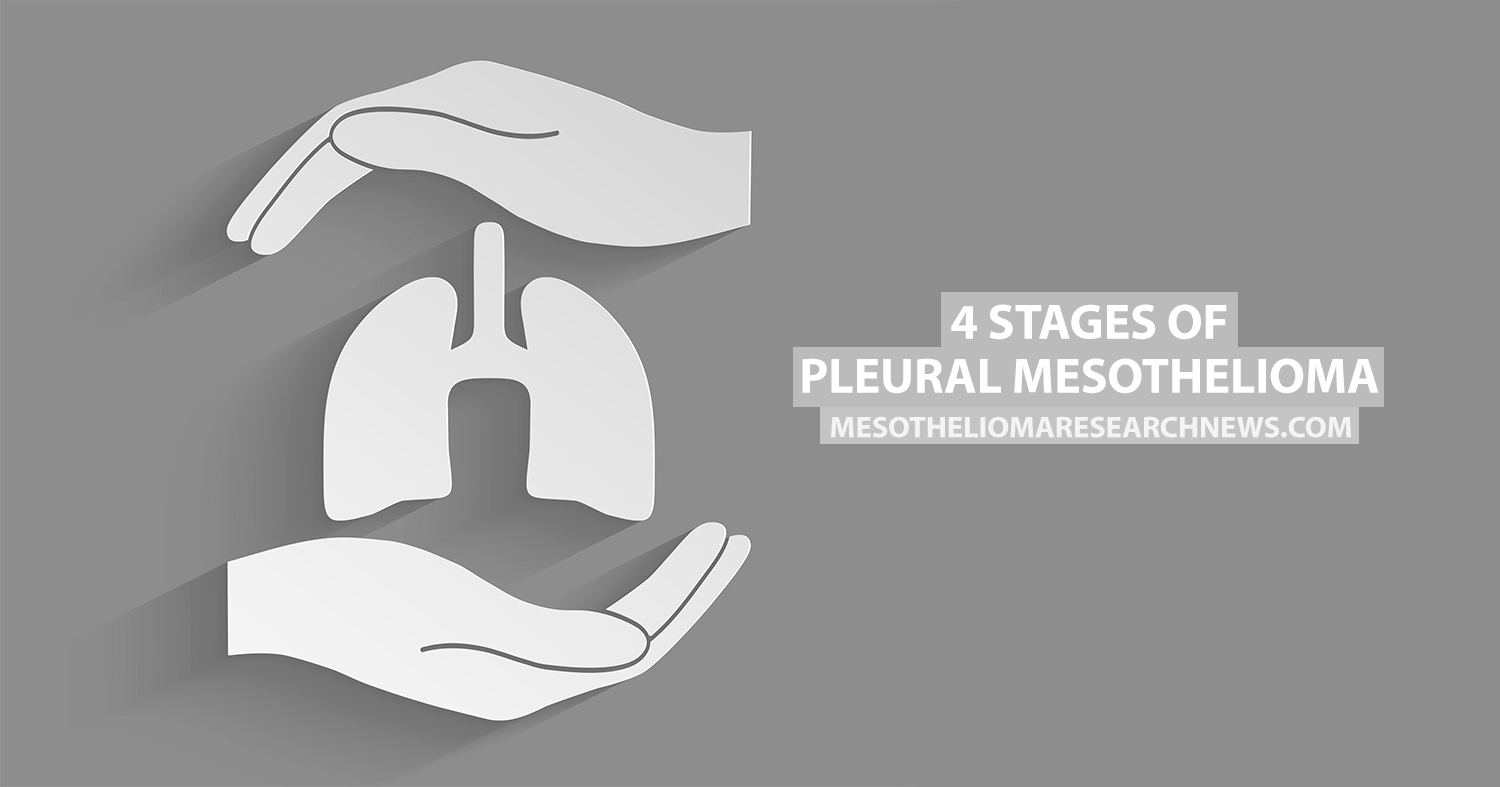 4 Stages Of Pleural Mesothelioma Mesothelioma Research News