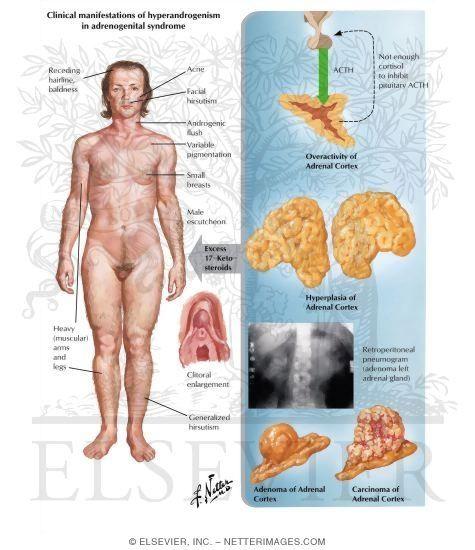 Pierdere în greutate celulă super hd, Pierdere în greutate super