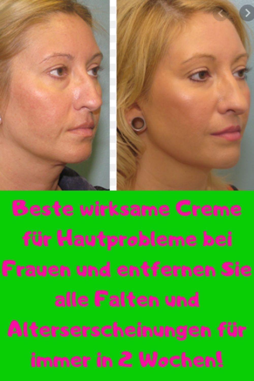Beste Wirksame Creme Für Hautprobleme In 2020 Haut Gesunde Hautpflege Hautprobleme