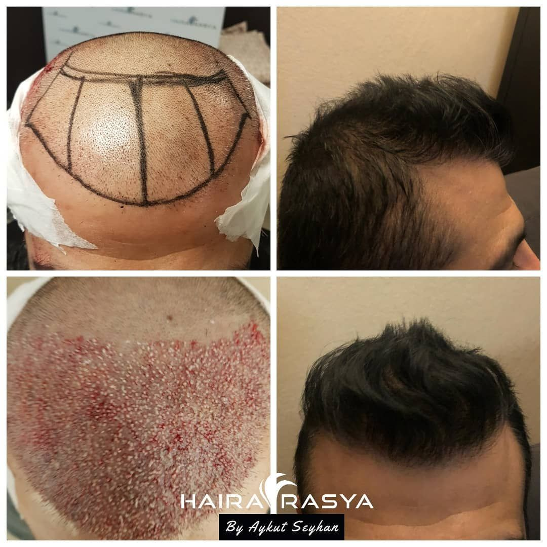 Faces go on smiling Hair transplant procedure, Hair