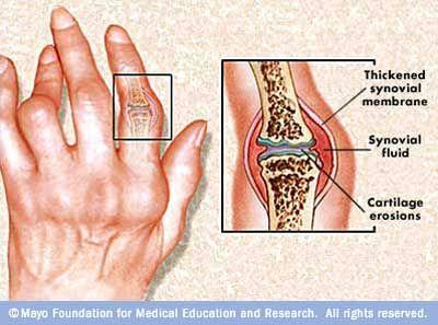 Tratamentul gonartrozei articula?iilor