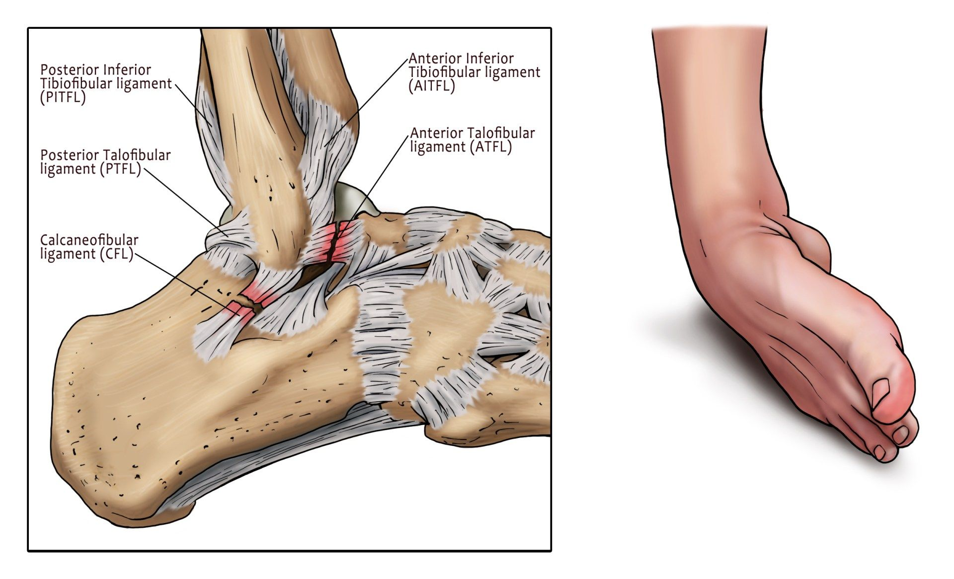 ankle sprain, ATFL ligament, ankle, pain | Healthy stuff | Pinterest ...