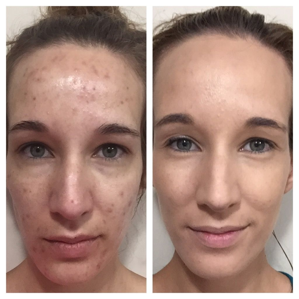 My Friend Used Arbonne Clear Future And Genius Microdermabrasion Wipes For 2 Months With These Amazing Results As Microdermabrasion Skin Tags On Face Arbonne