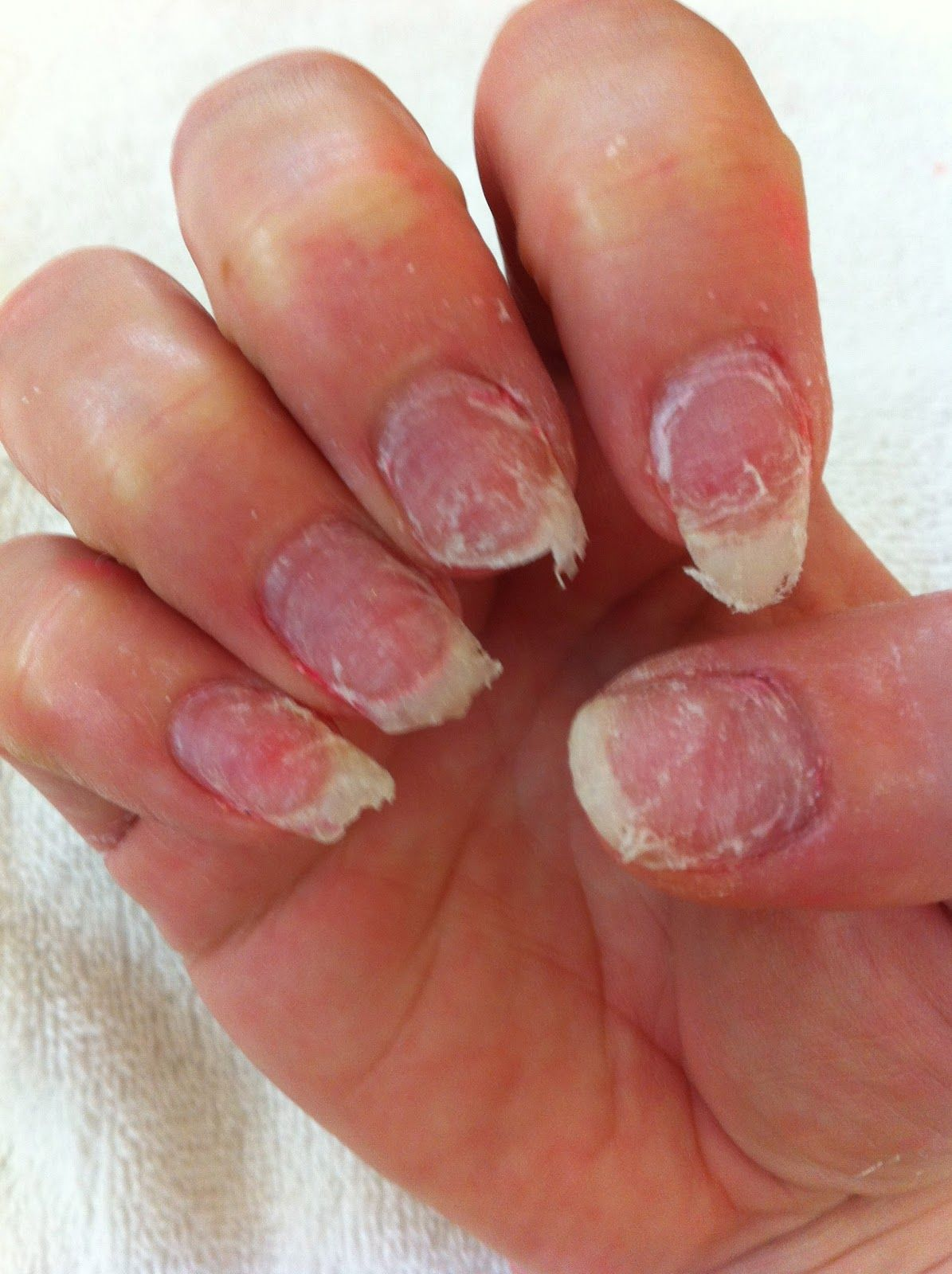 This can occur when moisture collects under acrylic nails. It is ...