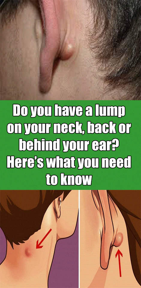 Do You Ve Got A Lump On Your Neck Back Or Behind Your Ear This Can Be What It Means Lumpundermyskin Lumpunderskinonfa Lump Behind Ear Neck Epidermoid Cyst