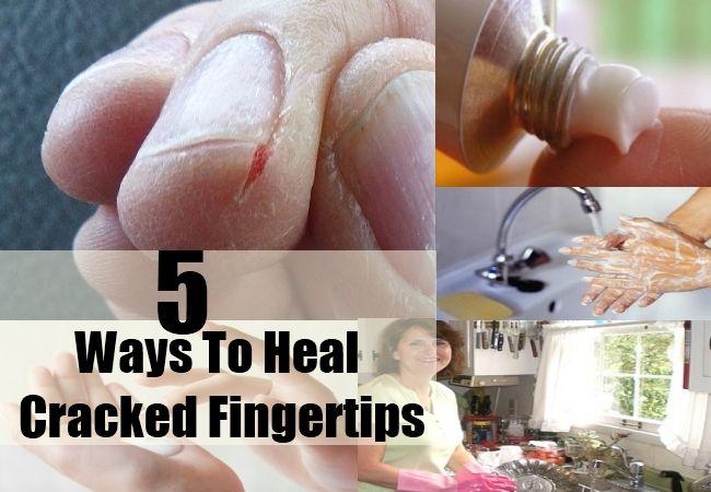 Ways To Heal Cracked Fingertips Jpg 650 450 Pixels Cracked Fingertips Peeling Fingertips Cracked Fingers