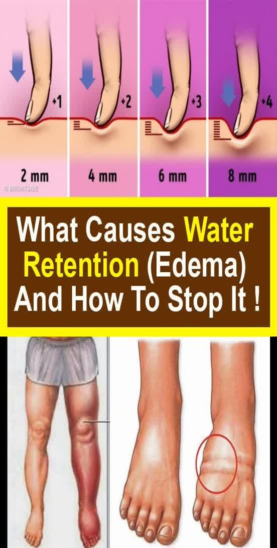 What Causes Water Retention (edema) And How To Stop It !!!