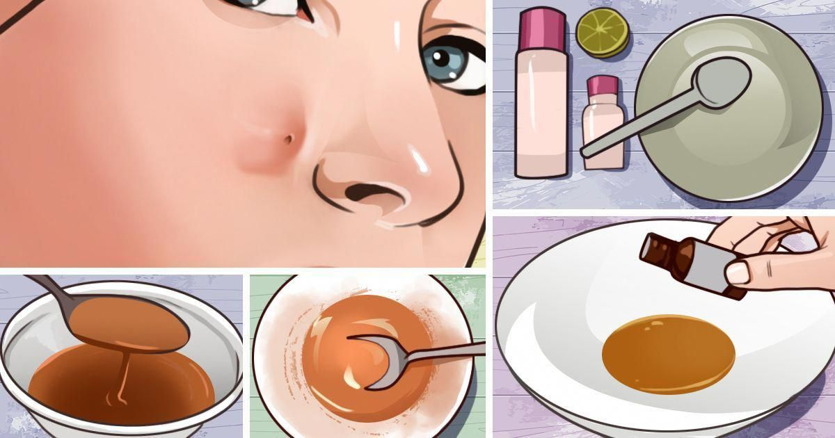 Get rid of those pesky pimples that are under the skin