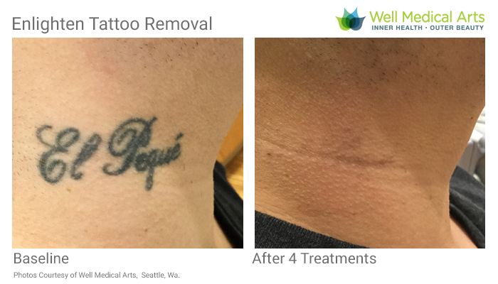 More Awesome results with our Cutera Enlighten Tattoo Removal Laser