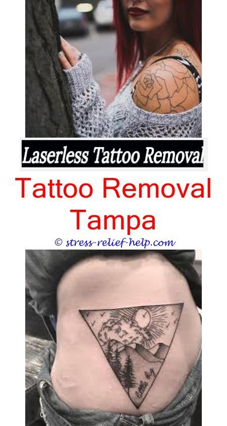 How To Remove Tattoo Stencil Ink Does Think Tattoo Removal Cream