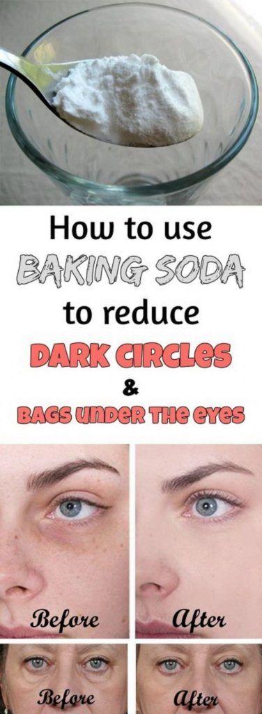 How to get rid of under-eyes dark circles and bags using baking soda #darkcircle