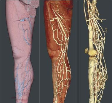 venous CT scan | For the Man of our Home | Pinterest