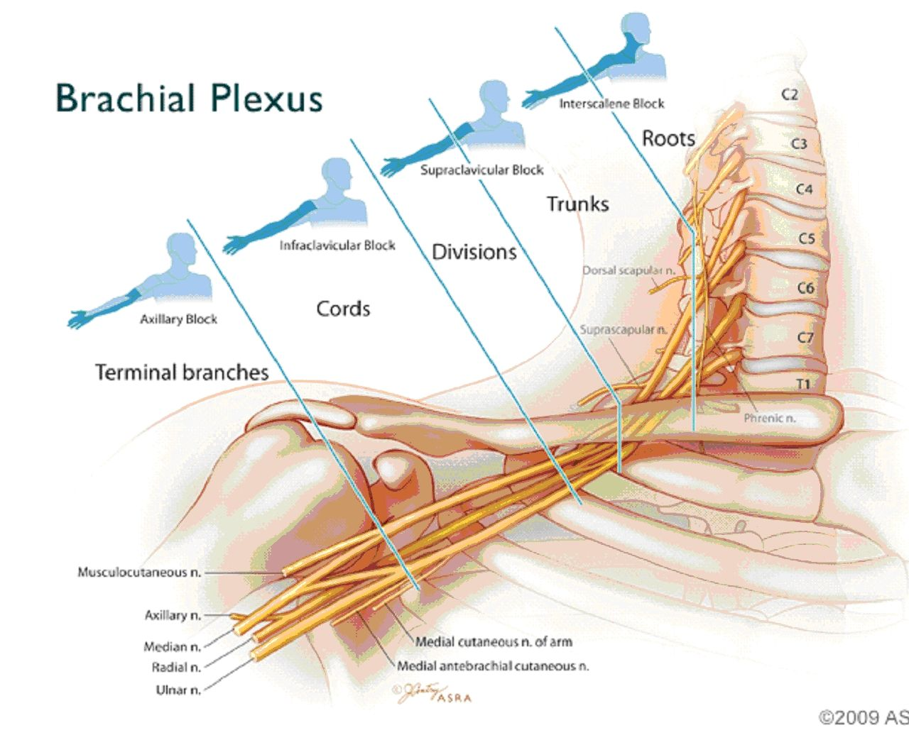 Anterior And Lateral Division Of The Brachial Plexus Google Search