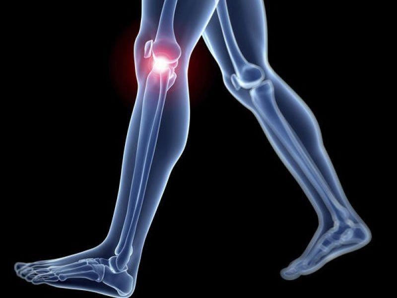 Псориатичен артрит болки в гърба