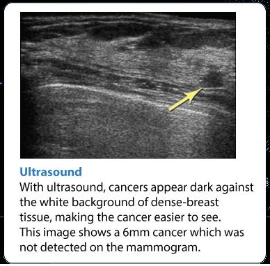 Breast Ultrasound Center
