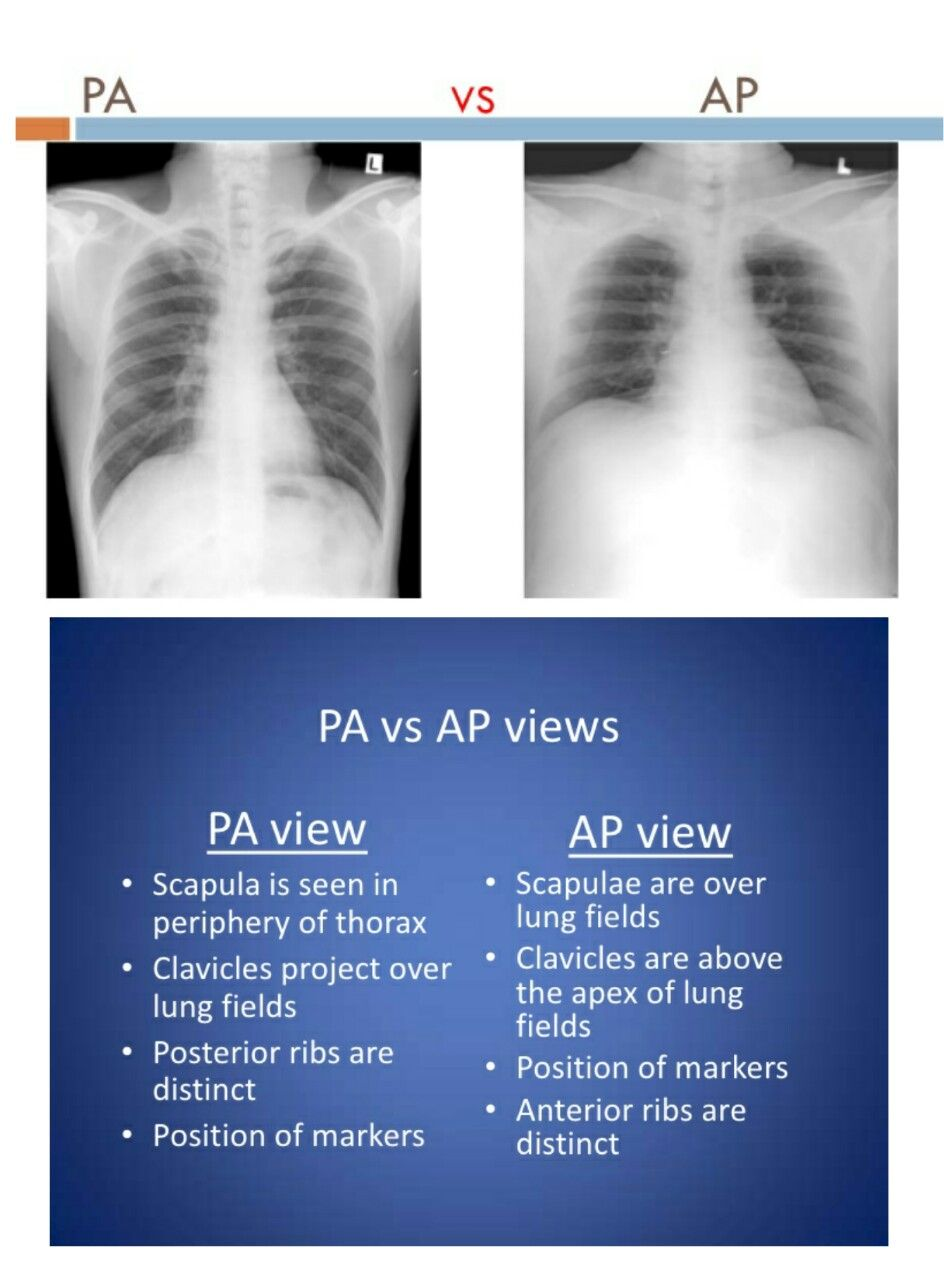 medium resolution of pa vs ap view radiology medical med school medical technology