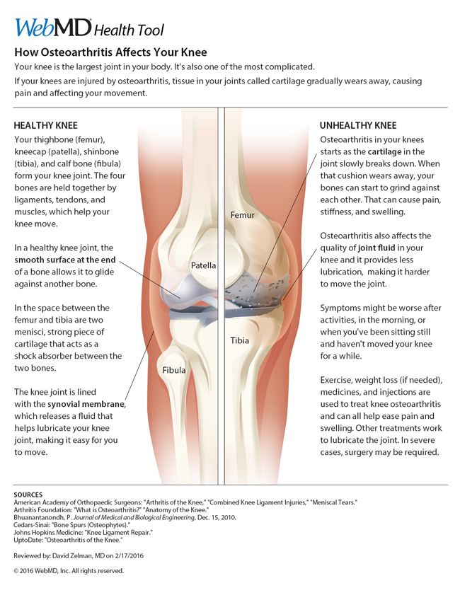Osteoarthritis and Your Knee Knee pain