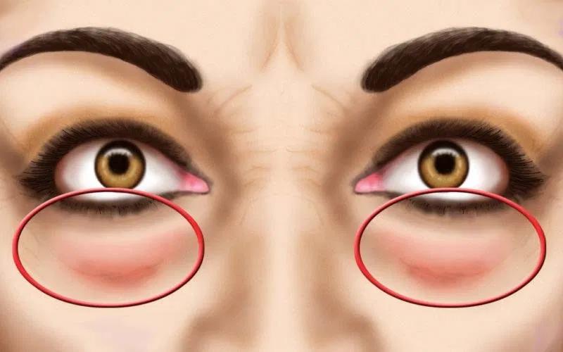 A szemhéjak ödémája befolyásolja a látásélességet Szemészet   Digitális Tankönyvtár