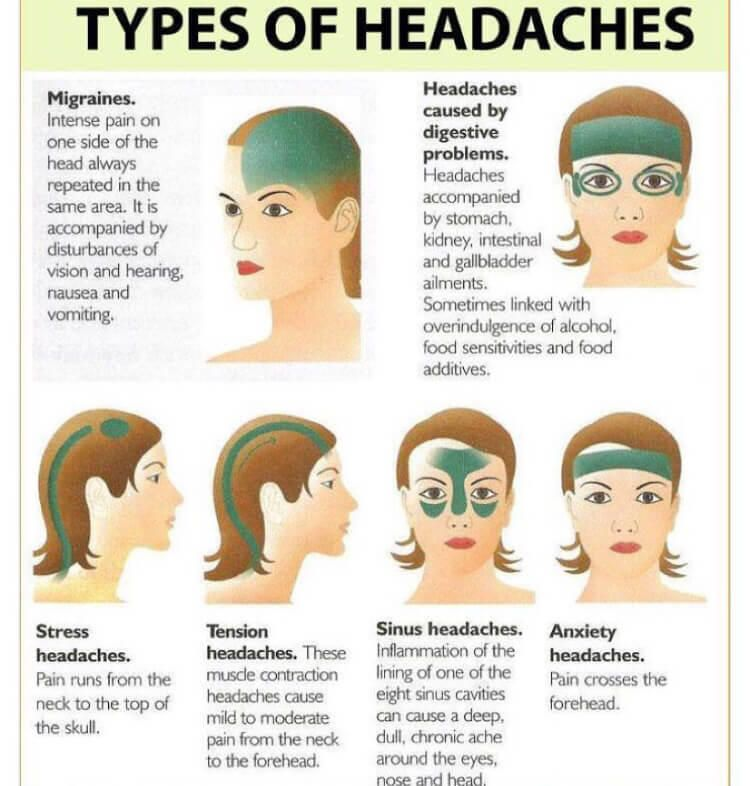 Headache Tips Headache Diagram Headache Diagram Causes Migraines Remedies Headache Types Headache Remedies