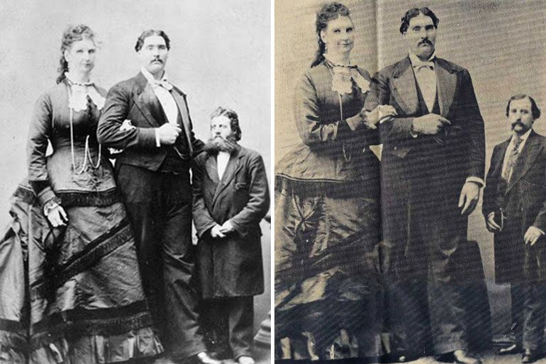 Anna Swan and Martin Van Buren Bates - what a miracle these two found eachother! Queen Victoria sent them a weddingpresent, and they shared a healthy and happy life together (in a big house, with everything accustomed to their size)