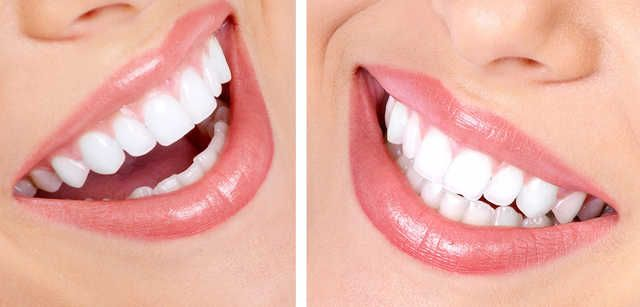 Dental Clinic In Bhubaneswar For Laser Dentistry Teeth Whitening