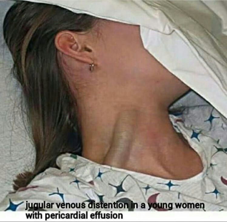 JVD...jugular venous distention | Nursing...tips, tricks ...
