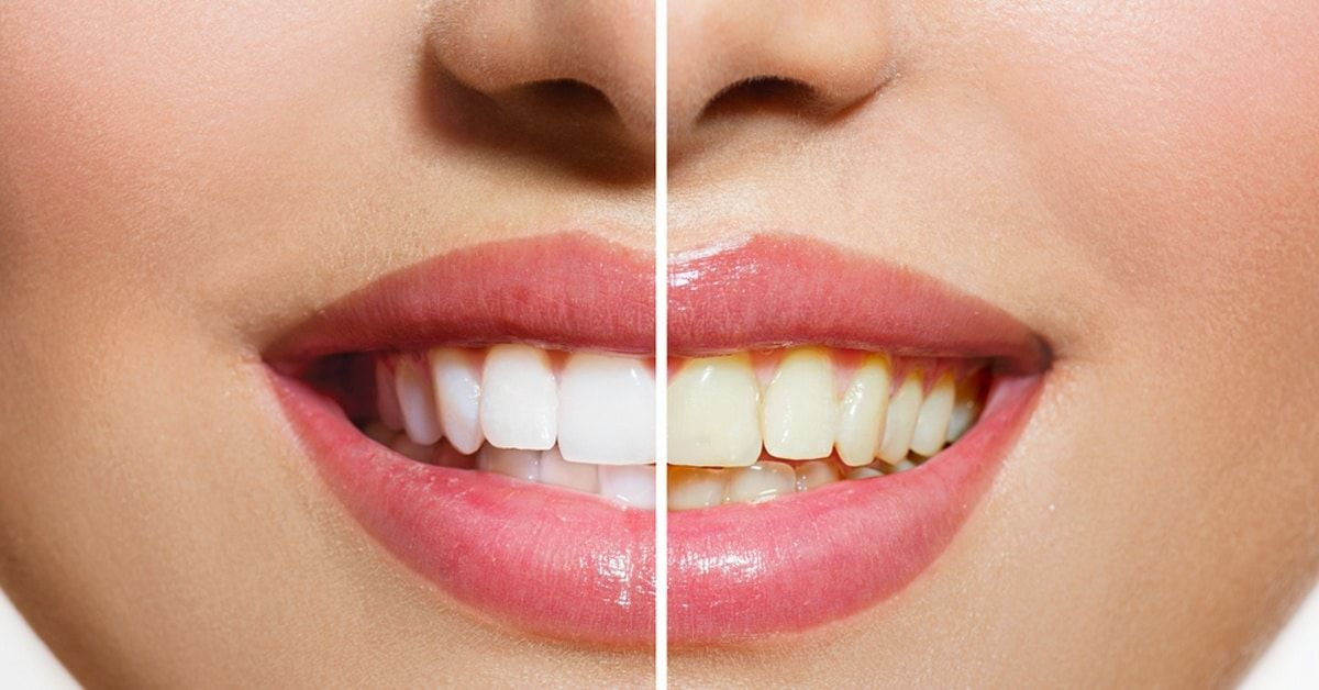 Here is a list of 7 effective ways to naturally whiten your teeth. They include natural home remedies and eating certain foods.
