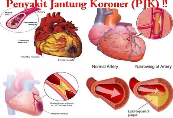 Pin oleh kezia zara di anime Penyakit jantung, Jantung