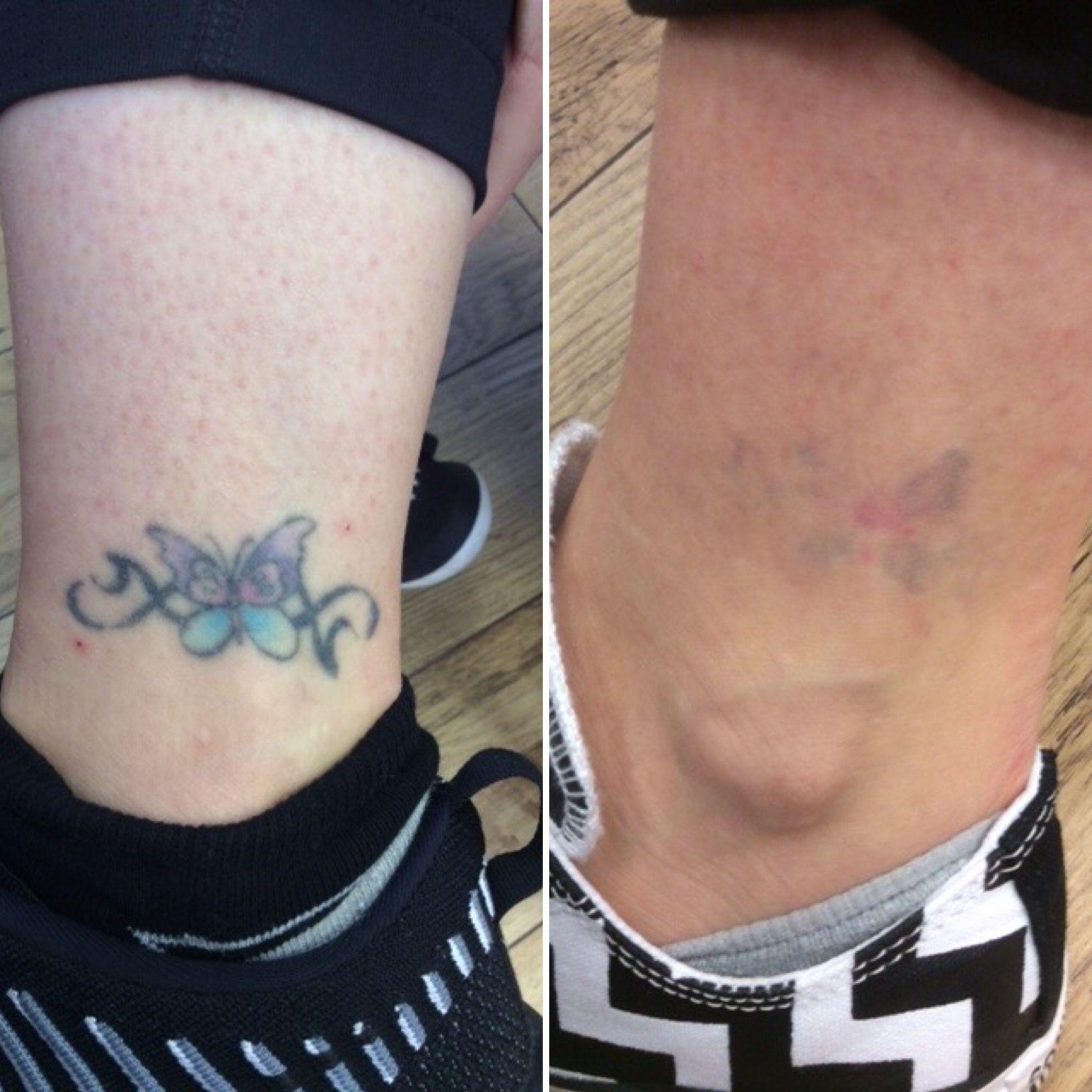 Laser Tattoo Removal Results Laser Tattoo Tattoo Removal Results Laser Tattoo Removal