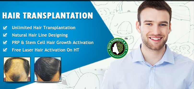 Get Hair Transplant At Discount Rates For Limited Period