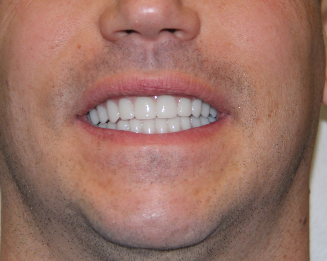Pin by G4 By Golpa on May 2017 G4 Implant Solution