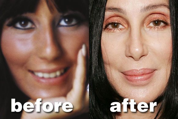 Celebrity Cher Plastic Surgery Before And After Http Www Celeb