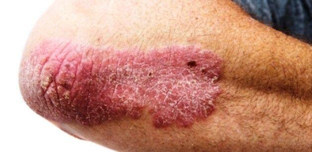 Gyógyíthatatlannak mondott bőrbetegségek szűnnek meg ezekkel a természetes csodaszerekkel! - MindenegybenBlog