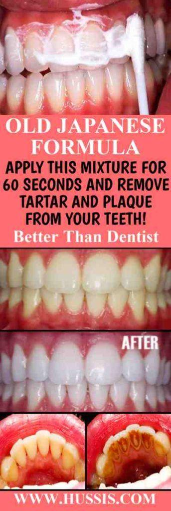 ALTE JAPANISCHE FORMEL WENDEN SIE DIESE MISCHUNG 60 SEKUNDEN AN UND ENTFERNEN SIE Zahnstein UND PLAQUE VON IHREN ZÄHNEN! Besser als Zahnarzt   – Whitening