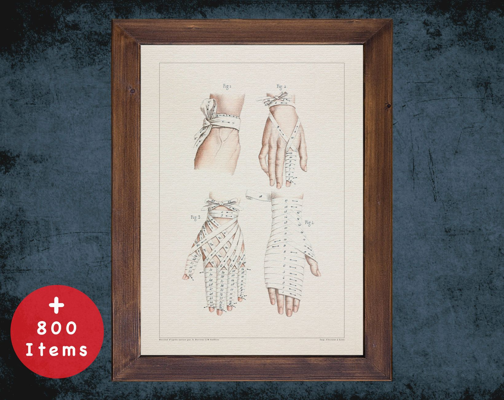 HAND FINGERS BANDAGE anatomy art print for medical student gift, Nurse and Nursing doctor office decor #medicalstudents
