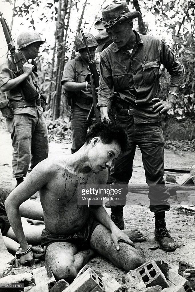 A South Vietnamese Soldier Displays An Injured Half-Naked -5479