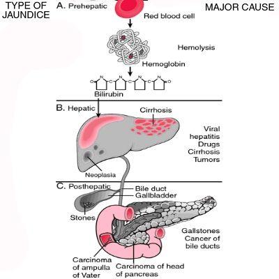 Jaundice Causes Symptoms And Types Jaundice Medical Mnemonics
