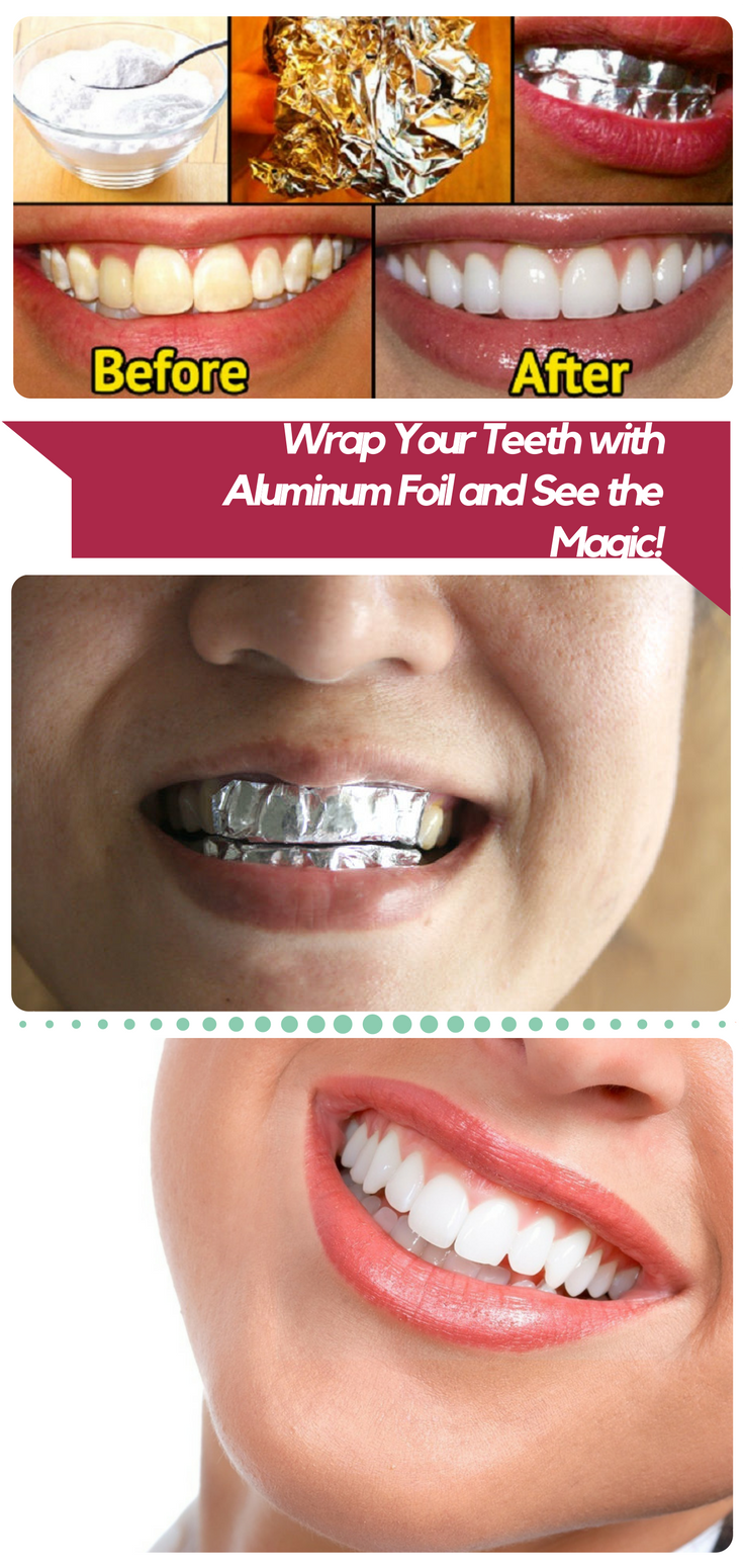 Wrap Your Teeth With Aluminum Foil And See The Magic Beauty Tips