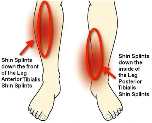 tips from the prose: what to do about shin splints ever have pain,