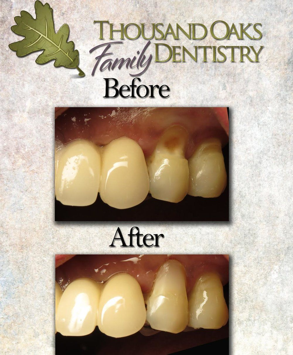 Cosmetic Gum Line Fillings Beautiful Dentistry Pinterest Teeth