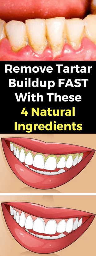 Remove Tartar Buildup Fast & These 4 Natural Ingredients!!!  #wieghtloss  #fitness