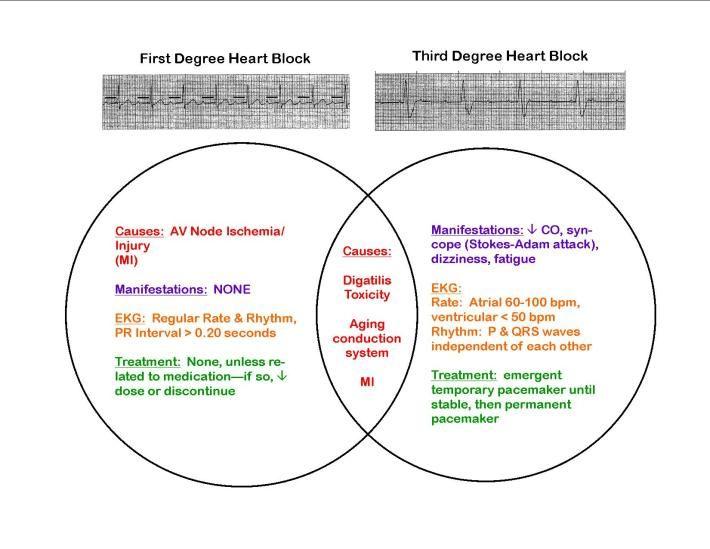 cardiac dysrhythmia ekg venn diagram fun critical care block diagram vs flowchart block diagram vs flowchart block diagram vs flowchart block diagram vs flowchart
