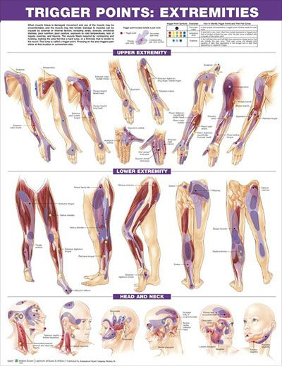 Trigger Points: Torso and Extremities Chart Set 20x26 | Pinterest ...