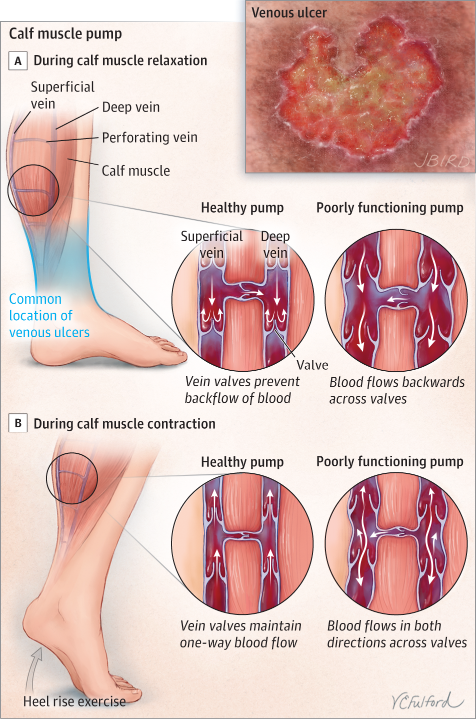 Venous Ulcers. JAMA Dermatol. 2015;151(9):1044. doi:10.1001 ...