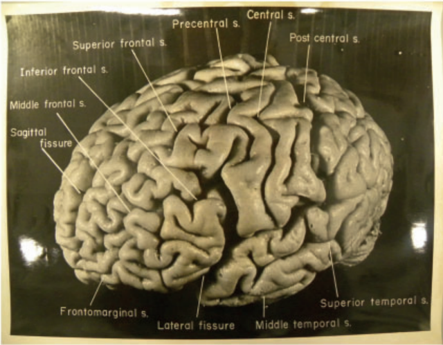 Rare photos of Einstein's brain reveal significant
