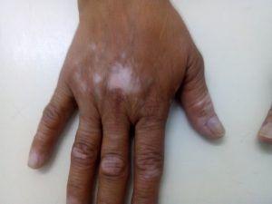 ¡¿Manchas blancas en la piel? puede que sea vitiligo. Aqui te dejo un articulo…