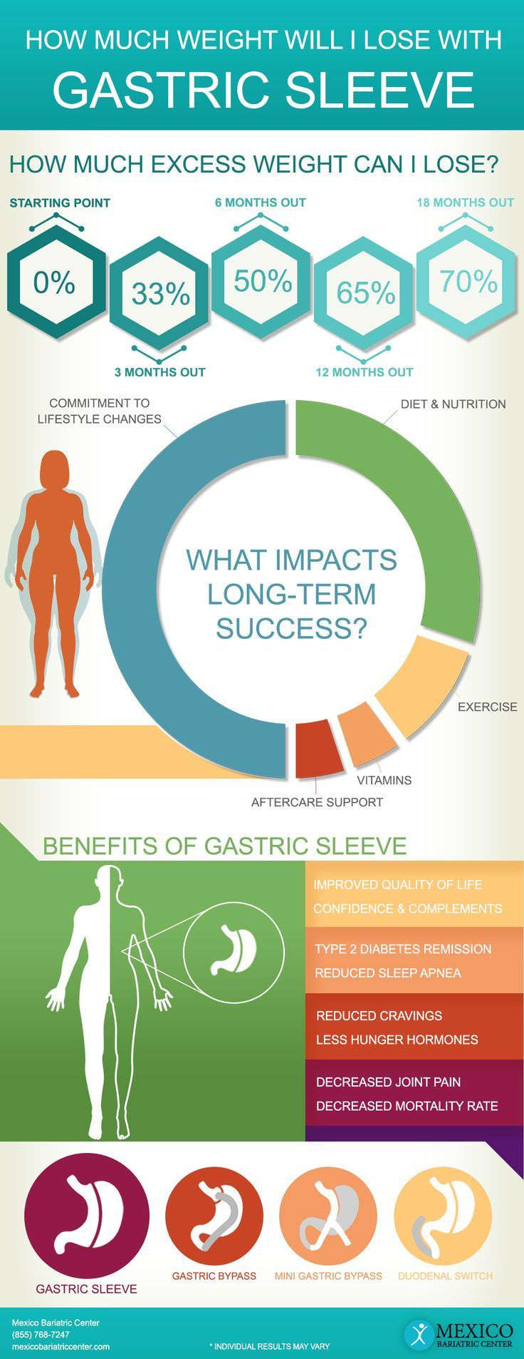 Gastric Sleeve Surgery Weight Loss Timeline Check Out What You Can