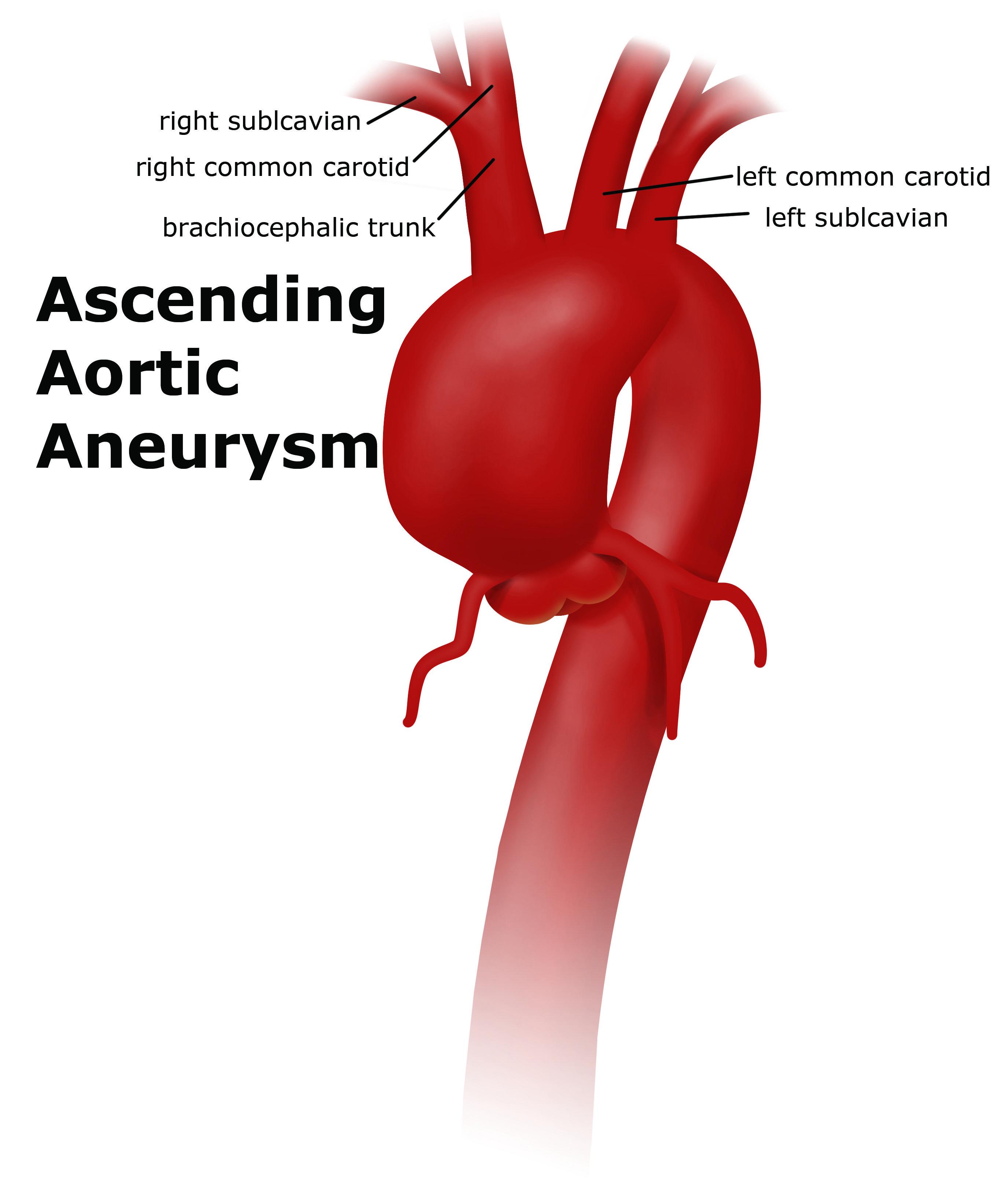 Thoracic Aortic Aneurysm | UF Health Aorta Center|Diseases ...