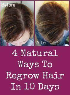 Natural Ways To Regrow Hair For Men