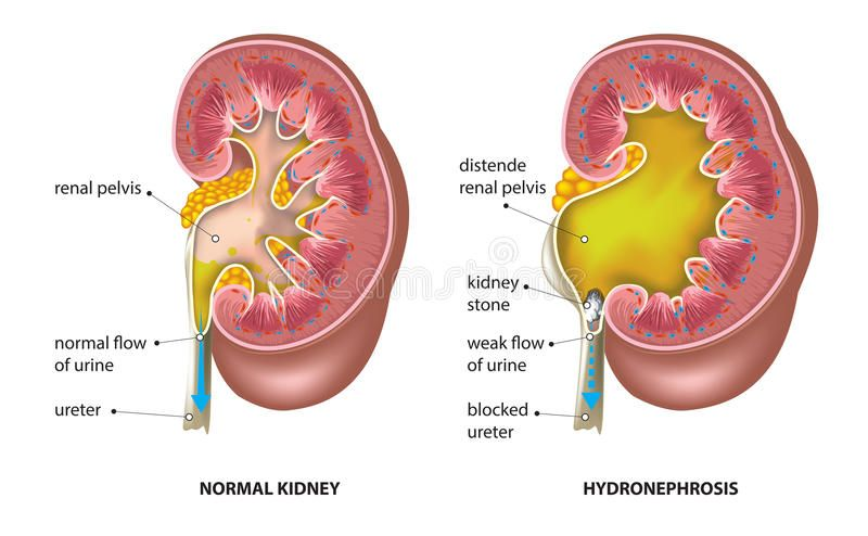 Kidney Stone Vector Illustration Of Normal Kidney An Kidney With Hydronephrosis Affiliate Vector Stone Illustration Kidney Stones Vector Illustration